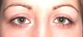 A woman prior to receiving permalash eyelash and eyebrow treatment